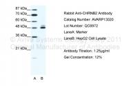 AVARP13020_T100 - Neuronal acetylcholine receptor subunit beta-2