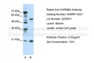 AVARP13021_P050 - Neuronal acetylcholine receptor subunit beta-3