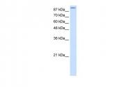 AVARP13038_T100 - Glutamate receptor 2 / GLUR2