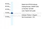 AVARP13042_T100 - Serotonin receptor 1B (HTR1B)