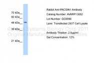 AVARP13052_T100 - PACSIN1