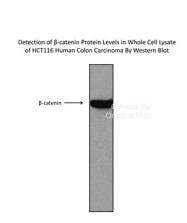 AVARP14001_T100 - Catenin beta-1