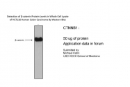 P100600_T100 - Catenin beta-1