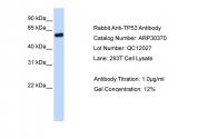 ARP30370_P050 - TP53 / p53