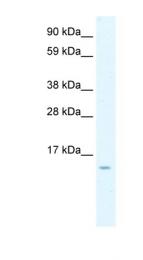 ARP30804_P050 - MCP3 / CCL7