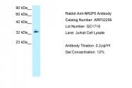 ARP32256_P050 - NR2F6