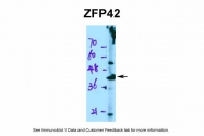 ARP36244_P050 - ZFP42