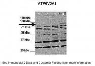 ARP37232_P050 - ATP6V0A1