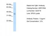 ARP37894_P050 - TGFB1