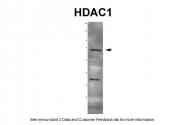 ARP38530_T100 - HDAC1