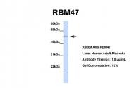 ARP40932_P050 - RBM47