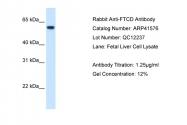 ARP41576_T100 - 58K Golgi Protein