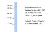ARP41757_P050 - Prothrombin (F2)