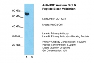 ARP44317_P050 - Hepatocyte growth factor / HGF
