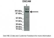ARP45086_P050 - DSCAM