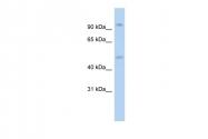 P100765_P050 - Glucocorticoid receptor