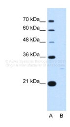 ARP48046_T100 - 14-3-3 protein zeta/delta