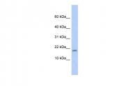 ARP56185_P050 - 14-3-3 protein sigma / SFN