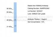 AVARP02062_P050 - 14-3-3 protein theta