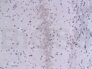 bs-0030M - PPP3CA / Calcineurin A