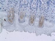 bs-0038R - Glucagon