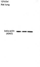 bs-0061R - Actin beta / ACTB