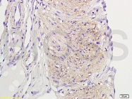 bs-0166R - Tachykinin receptor 3 (TACR3)