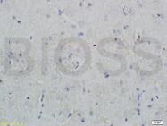 bs-0181R - Nociceptin receptor / OPRL1
