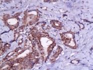 bs-0206R - Thyrotropin receptor / TSHR