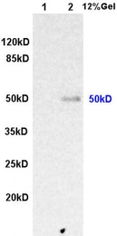 bs-0317R - Integrin-linked protein kinase