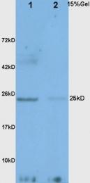 bs-0471R - Adiponectin