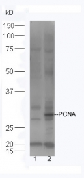bs-0491R - PCNA