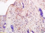 bs-0508R - Prolactin / PRL