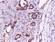 bs-0579R - CD105 / Endoglin
