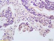 bs-0800R - Angiopoietin-1