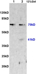 bs-0811R - Fractalkine / CX3CL1