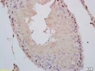 bs-0943R - Androgen receptor
