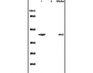 bs-0947R - Beta-2 adrenergic receptor