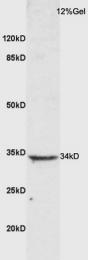 bs-10006R - CD152 / CTLA4