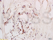 bs-1011R - CD184 / CXCR4