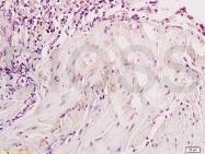 bs-1027R - Neuron specific enolase