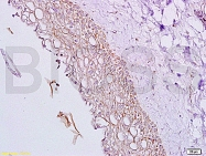 bs-1032R - Inhibin alpha / INHA