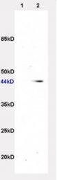 bs-1063R - Beta-3 adrenergic receptor