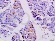 bs-1127R - SGCB (Beta-sarcoglycan)