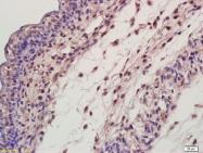 bs-1149R - Ectodysplasin-A