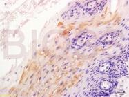 bs-1165R - Catenin beta-1