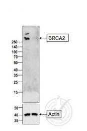 bs-1210R - BRCA2 / FANCD1