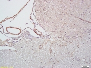 bs-1258R - CD102 / ICAM2
