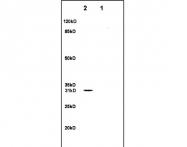 bs-1303R - SFRP1