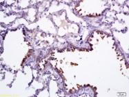 bs-1487R - SCGB1A1 / Uteroglobin